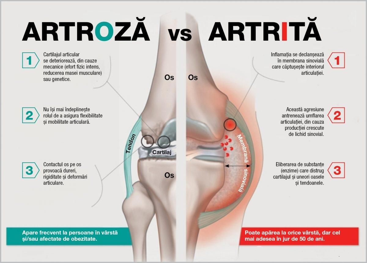 dureri la nivelul articulațiilor cotului cu osteochondroză viferon pentru dureri articulare